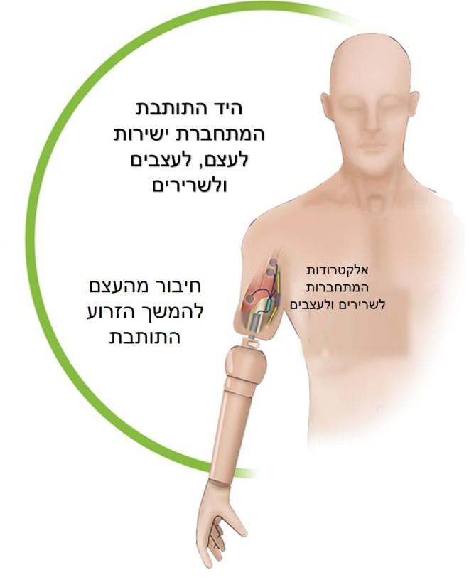אופן החיבור של הזרוע התותבת לגוף. מקור: Science Translational Medicine.